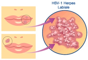 herpes hsv-2 virus