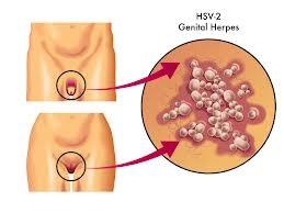 herpes hsv2