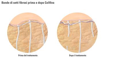 Trattamento Prima e dopo Celfina