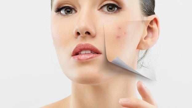 medicina estetica non invasiva per eliminare cicatrici da acne