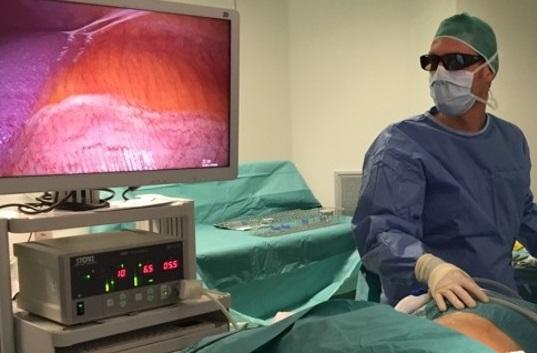 Tumore al rene la laparoscopia diventa in 3D