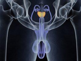 Prostate Urine Risk - nuovo test cancro alla prostata