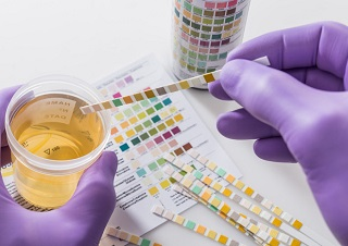 Prostate Urine Risk - nuovo test cancro alla prostata 2