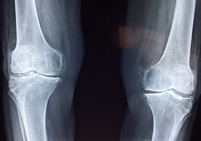 First Human Surgical Procedure with Injectable HA-Based Bone Repair Therapy
