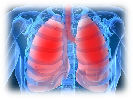 polmonite chimica