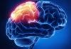 trombosi venosa cerebrale