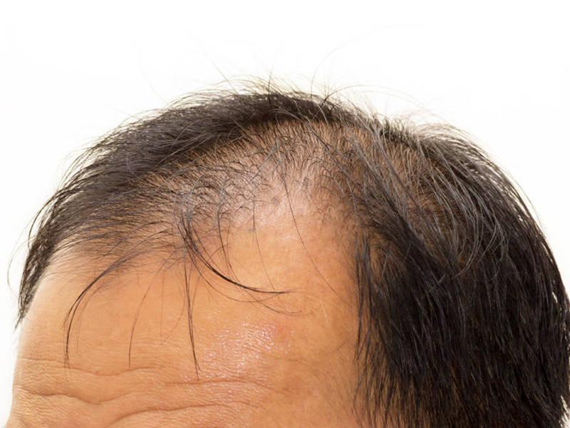 CADUTA DEI CAPELLI alopecia mascile