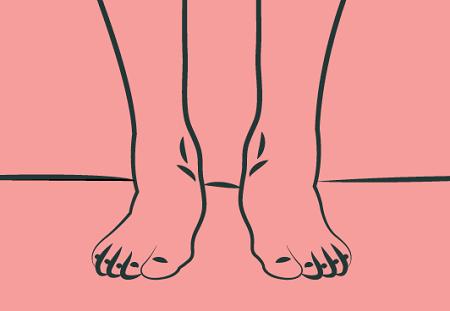 patologie piede sindrome pronatoria