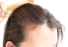 La perdita di capelli - agire alla radice del bulbo 2