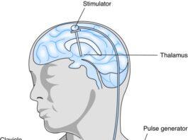 Stimolatore Cervello