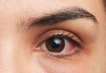 Occhio arrossato