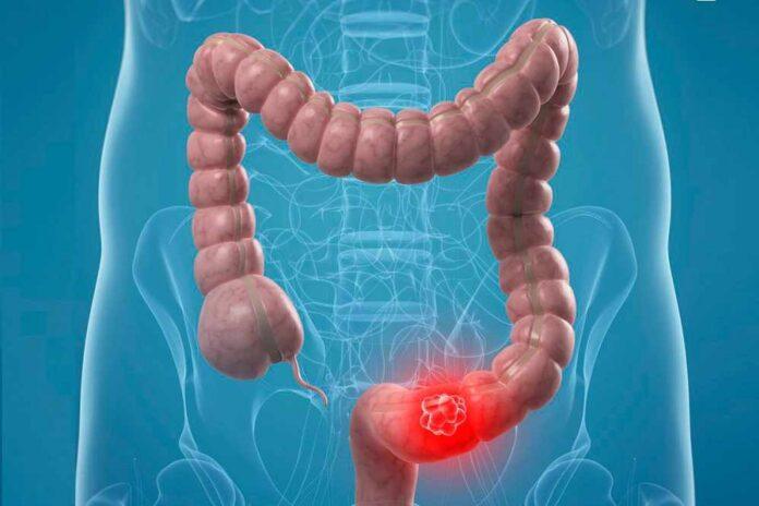 tumore del colon retto